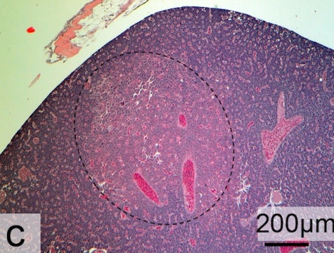 Image of liver removed from a Japanese medaka fed plastics with absorbed toxins. Circled in black is a tumor that developed during the experiment (see light pink coloration). Image via Scientific Reports/Rochman et. al.